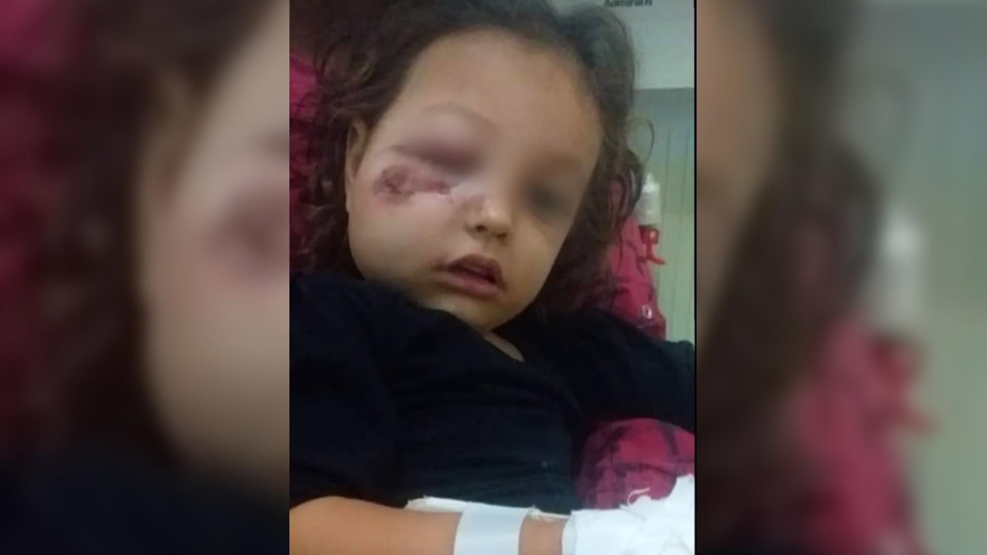 Investigan agresión de GNB contra pequeña de dos años